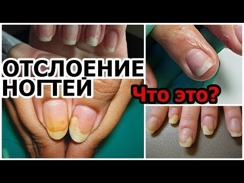 Ноготь отходит от кожи на руке