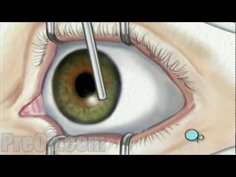 Laser Eye Surgery Prk