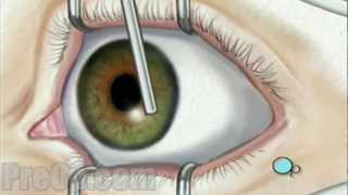 Laser Eye Surgery PRK - PreOp Patient Education HD