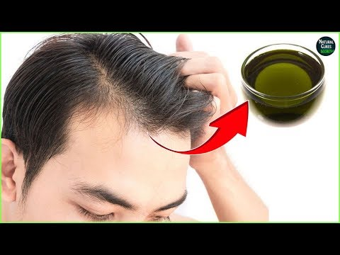 male-pattern-baldness-reversal-naturally-in-2-weeks-|-baldness-cure