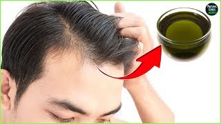 Video Male Pattern Baldness Reversal Naturally In 2 Weeks | Baldness Cure download MP3, 3GP, MP4, WEBM, AVI, FLV Agustus 2018
