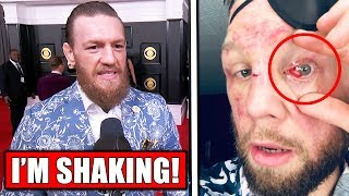 conor-mcgregor-gives-emotional-interview-chael-sonnen-on-jon-jones-vs-reyes-nik-lentz-eye-injury