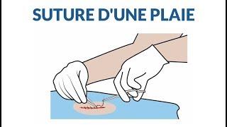 Comment se passe la suture d'une plaie ?