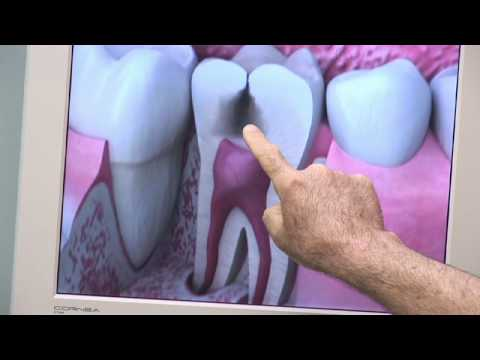 Dental Health & Gum Disease : What Does a Cavity Look Like?