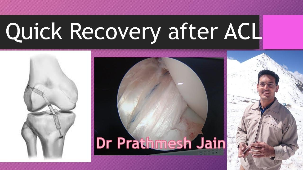 ACL सर्जरी के बाद  जल्द से जल्द रिकवरी, EXCELLENT RESULTS at 1 month ACL surgery.  Dr Prathmesh Jain