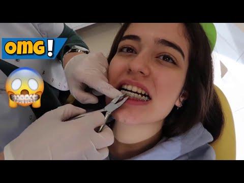 Diş tellerim çıkıyor! | Okul Sınıf arkadaşlarım💛