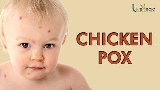 DIY: Best Cure For Kids Chicken Pox with Natural Home Remedies | LIVE VEDIC