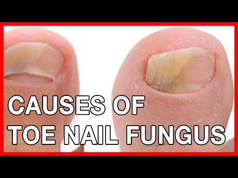 Nail and Toe Fungal Infection: Causes, Treatment, Home Remedies