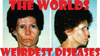 5 of the worlds weirdest diseases!
