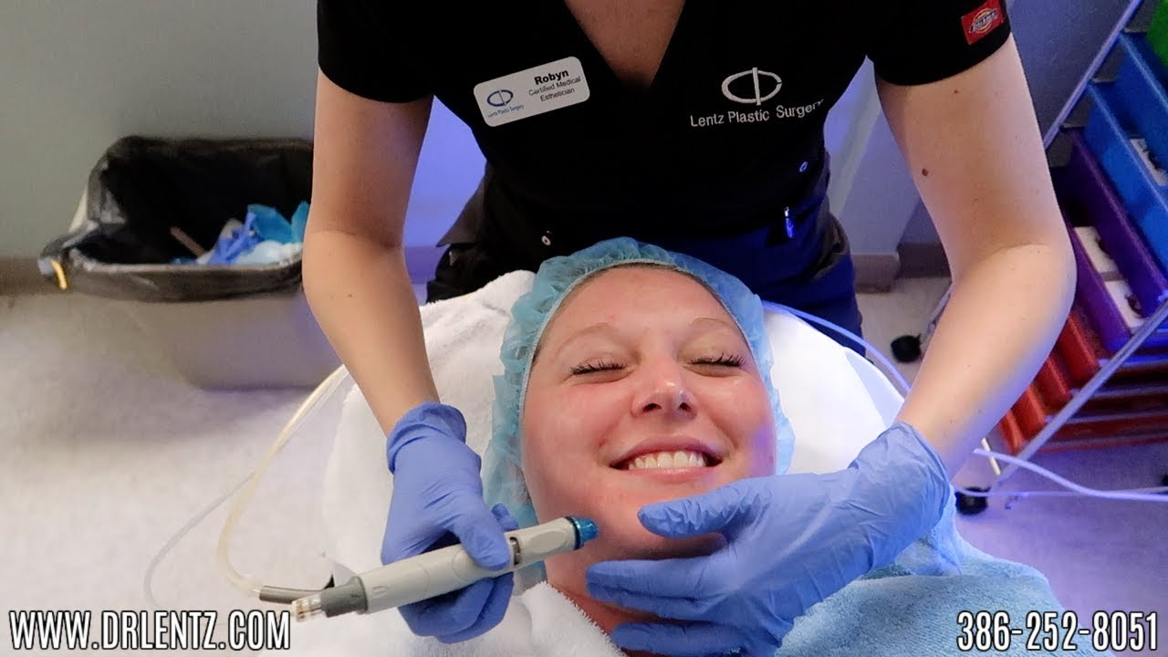 OUR FIRST TIME GETTING A HYDRAFACIAL   LENTZ PLASTIC SURGERY