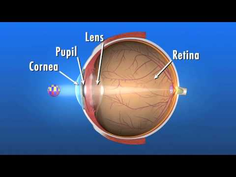 What is a Cataract and how does it affect my vision?