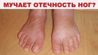 10 САМЫХ ЭФФЕКТИВНЫХ народных способов как избавиться от отеков ног. Средства проверенные годами
