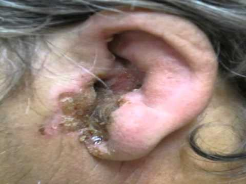 Ear Mites Dogs Causes