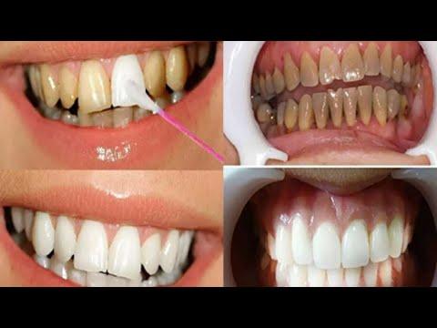 Jeito Facil E Barato Para Remover O Tartaro E Deixar Os Dentes Brancos