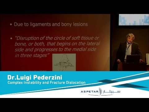 Complex Instability and Fracture Dislocation by Dr.Luigi Pederzini.mp4