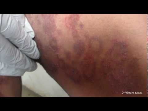 Tinea Cruris & Ring Worm On Thighs
