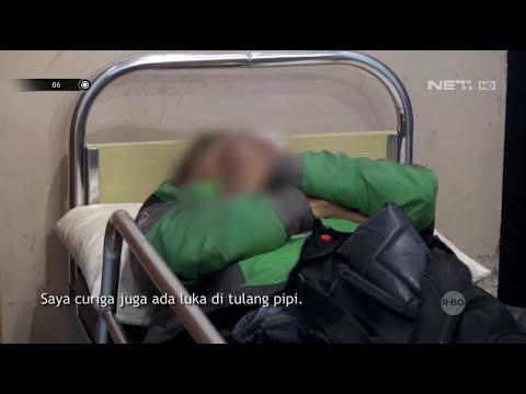 Kecelakaan Tunggal Hingga Motor Rusak, Driver Ojek Online Ini Dilarikan ke Rumah Sakit - 86