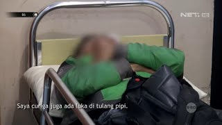 Download Kecelakaan Tunggal Hingga Motor Rusak, Driver Ojek Online Ini Dilarikan ke Rumah Sakit - 86 Mp3