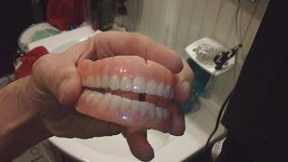 diy dentures teeth and stuff part 2 warning gross