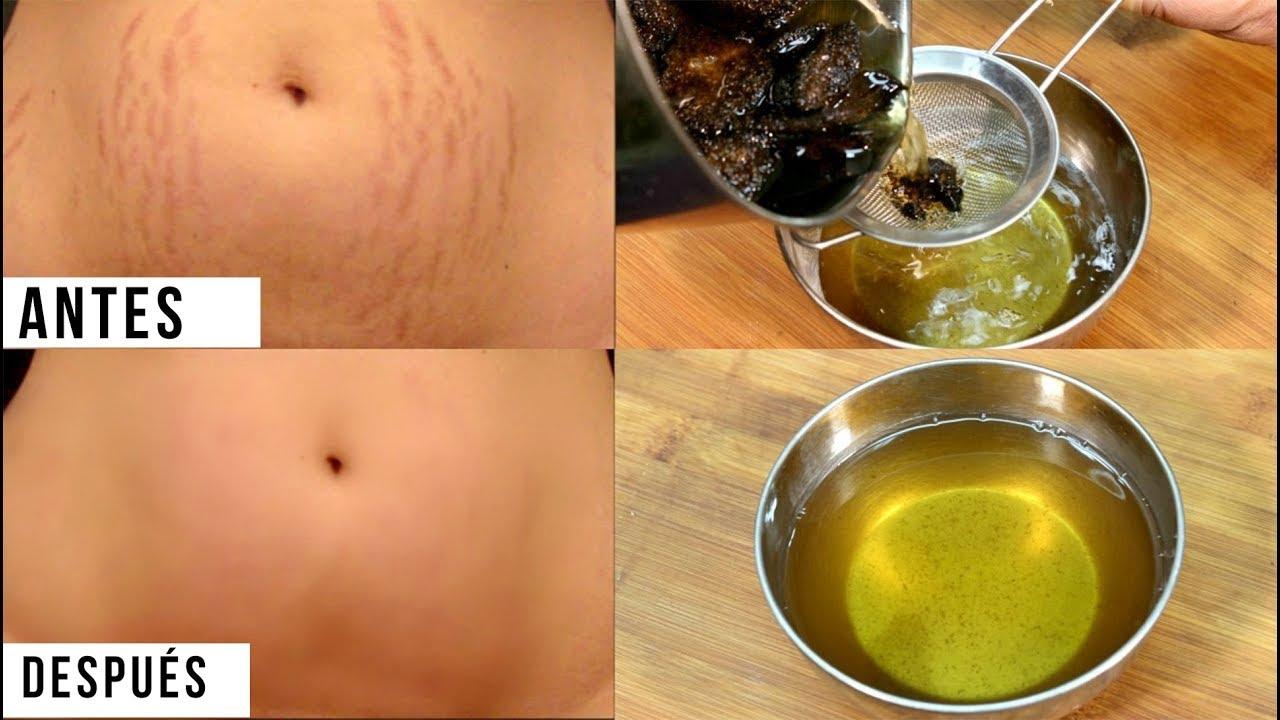 aceite de coco maternity estrias linear unit embarazo