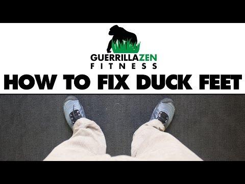 How To Fix Duck Feet | Externally Rotated Legs