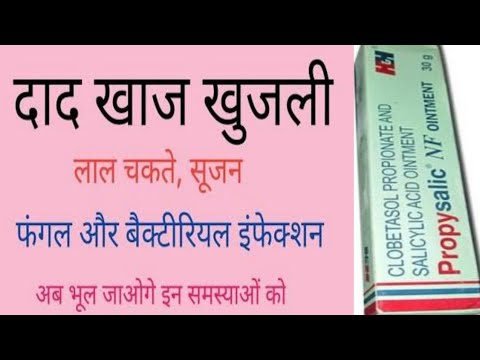 Propyderm NF cream For Fungal infection treatment in hindi from YouTube · Duration:  4 minutes 2 seconds