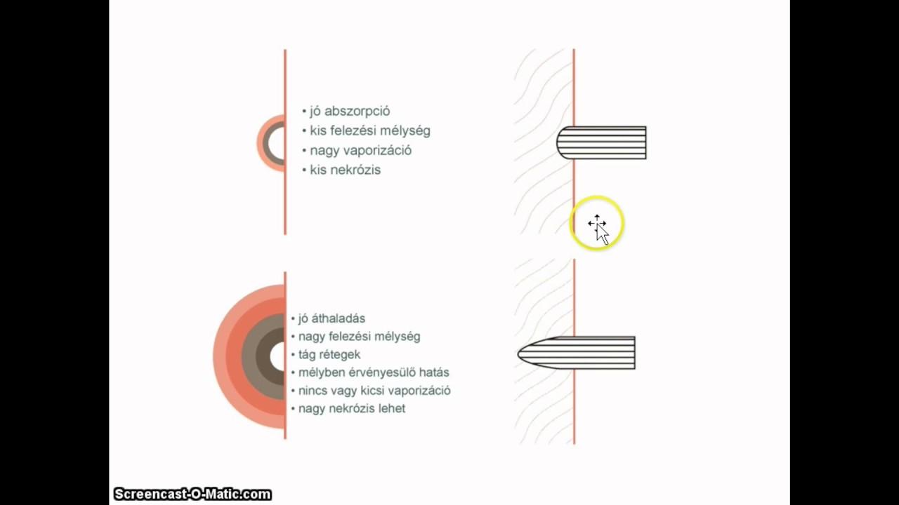 Kaplan r hatékony látás-helyreállítási módszer letöltése