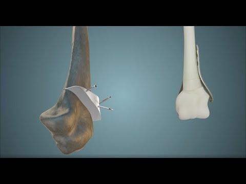 Dirsek yanlış kaynama 3D ameliyat