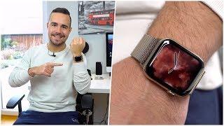 Apple Watch Series 4 im Langzeittest nach 2 Monaten Nutzung (Deutsch) | SwagTab