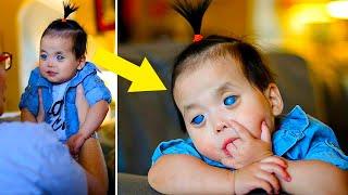 У этой Пятилетней Девочки Серебряные Глаза. Вот ее история