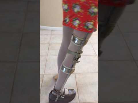 Polio Wonam Brace High heel Draging 4