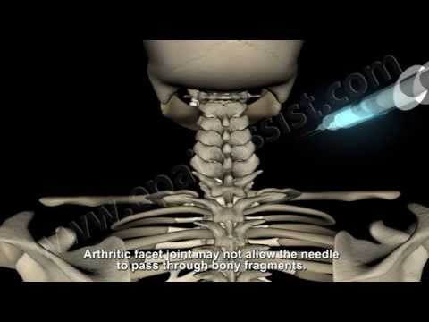 Cervical Facet Joint Block To Relieve Neck Pain