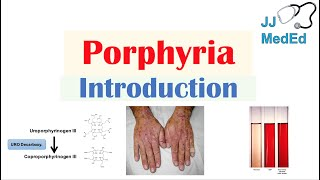 Introduction to Porphyria | Porphyria Cutanea Tarda vs. Acute Intermittent Porphyria