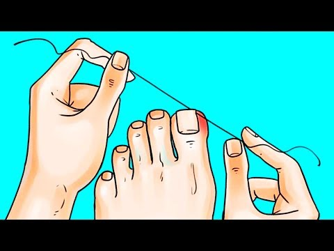 Thumbnail: 12 AWESOME TIPS TO MAKE YOUR FEET LOOK FABULOUS
