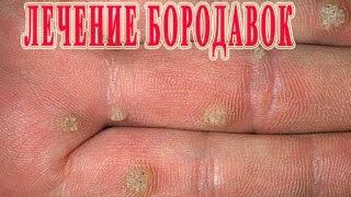 видео бородавки на руках