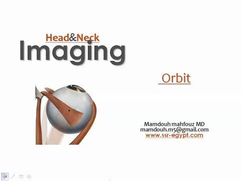 Imaging of Orbit I - DRE 7 - Dr Mamdouh Mahfouz