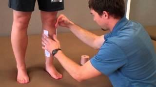 How to Tape Shin Splints