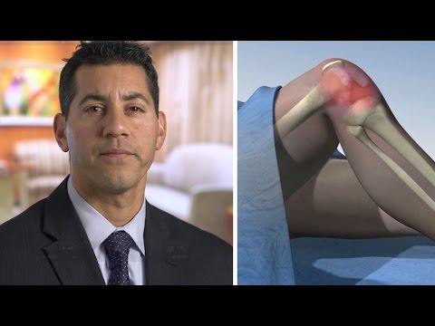 Bone Marrow Stem Cell Treatment (BMAC) for Knee Osteoarthritis - Mayo Clinic