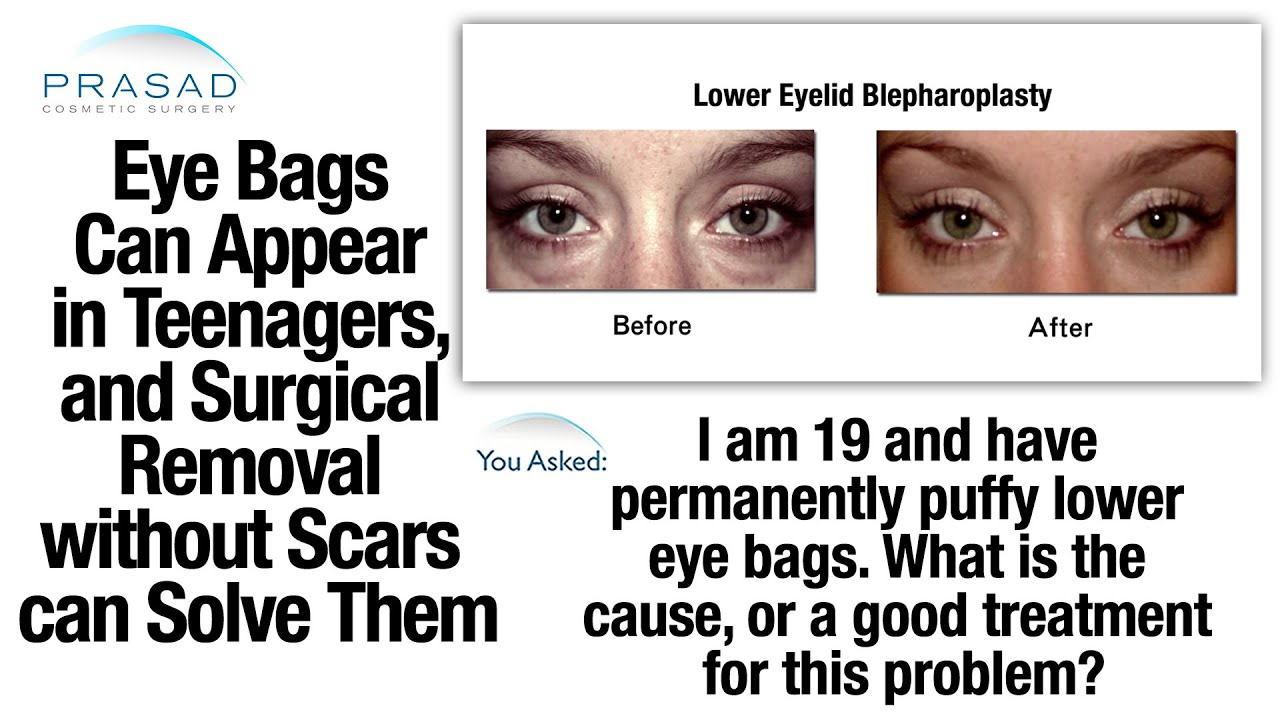 eye bags are caused by genetics and can appear in
