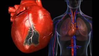 болезни сердца шунтирование(http://goo.gl/VBFl0I бесплатные Полезные уроки по профилактике и оздоровлению сердечно-сосудистой системы! Узнай..., 2016-03-17T21:24:16.000Z)