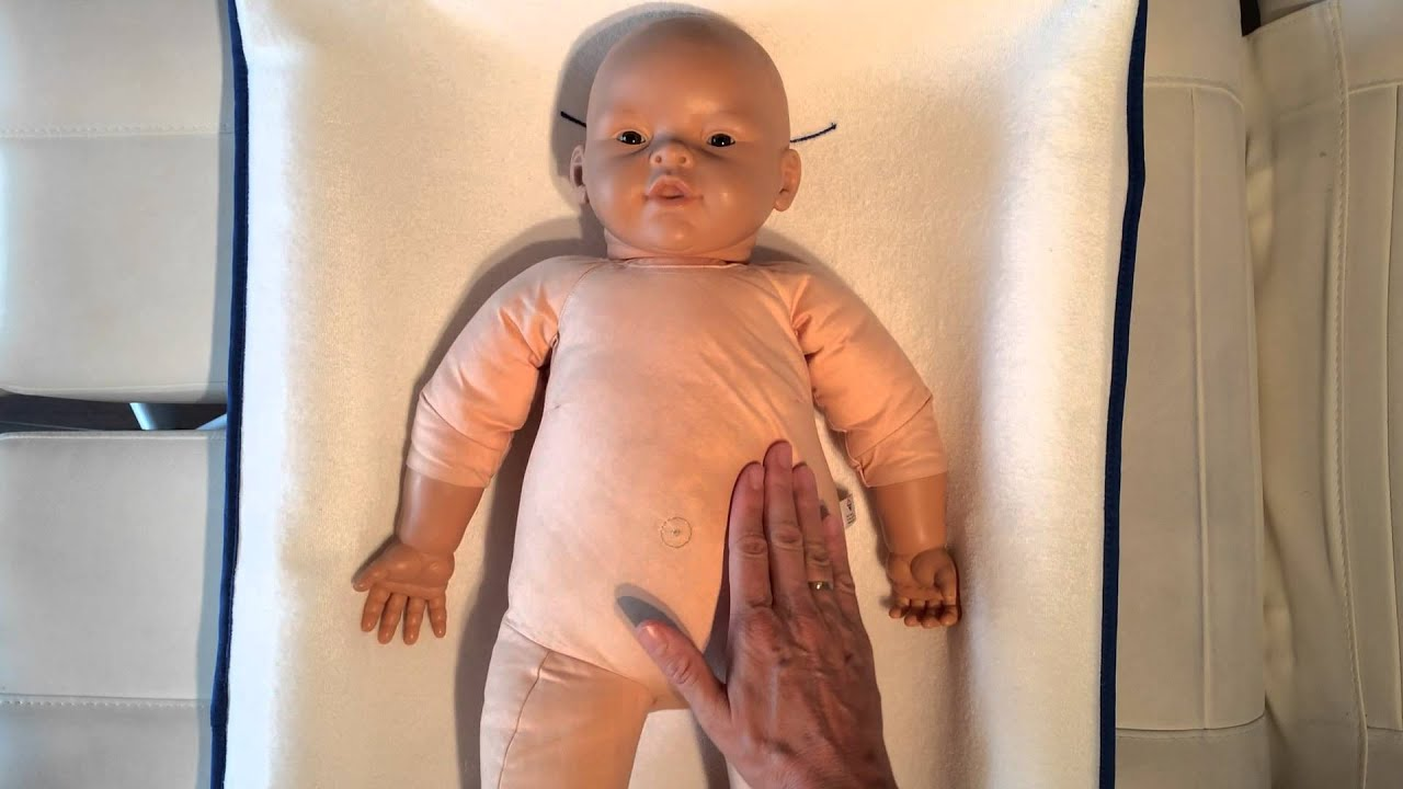 forstoppelse baby