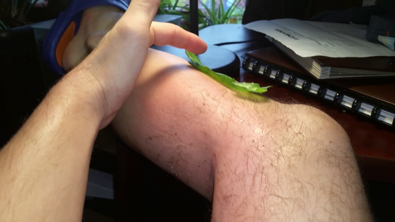 Utilisation d'Aloe vera sur une brûlure - YouTube