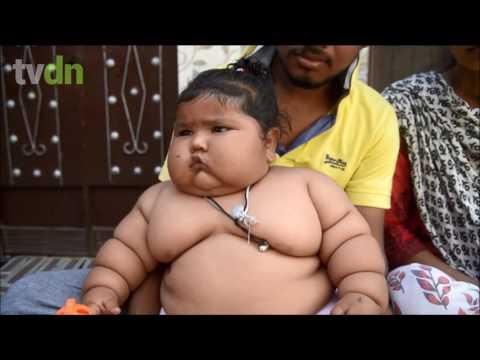 Menina obesa na Índia impressiona pelo tamanho
