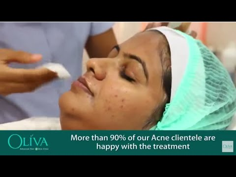 Pimples Treatment In Hyderabad | Acne Treatment In Hyderabad