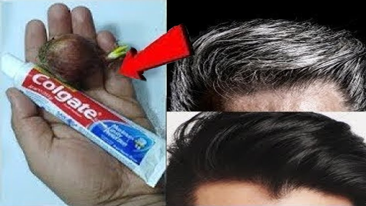 Permanently Get Rid Of Gray Hair From The First Use Permanently Naturally With This Simple Method Youtube