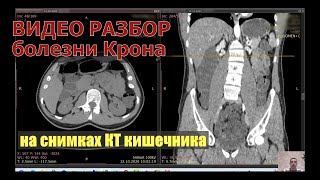 Видео разбор и оценка результатов КТ кишечника при атипичной болезни Крона после КТ расшифровки