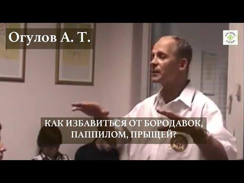 КАК ИЗБАВИТЬСЯ ОТ БОРОДАВОК, ПАППИЛОМ, ПРЫЩЕЙ? | ОГУЛОВ АЛЕКСАНДР
