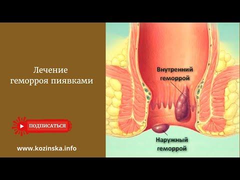Лечение геморроя пиявками | гирудотерапия | медицинские | гирудотерап | поставить | пиявками | лечебные | лечение | варикоз | пиявки | купить