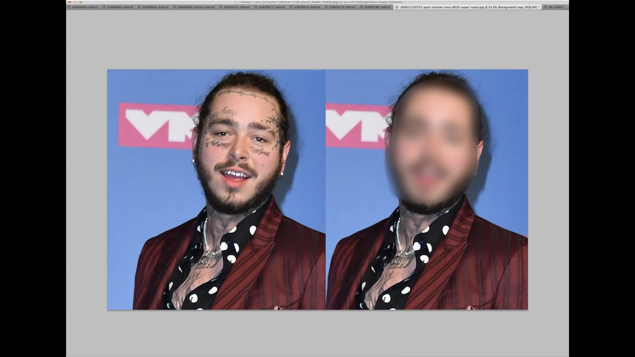 Removing Post Malone's Face Tattoos