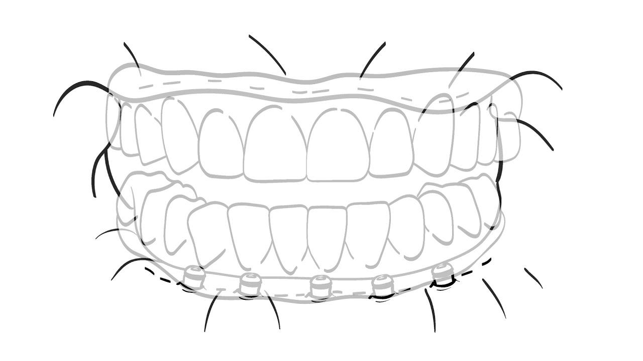 hybridge dental implant full mouth restoration